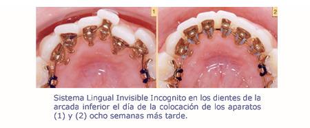 Movimiento de los dientes janer ortodoncia adultos barcelona - Como alinear los dientes en casa sin brackets ...