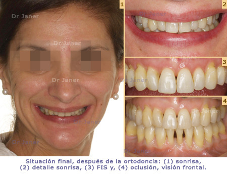 2_Montse-450_sit-fin-px
