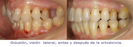 4_Montse-450_oclusion