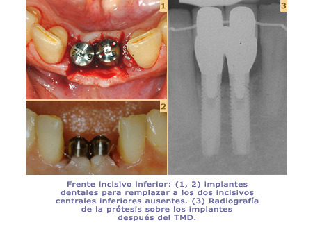 6_G-Mil-implants_450