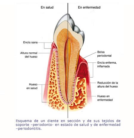 esquema-periodontitis-2