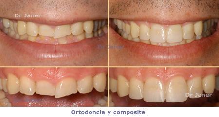 orto_i_compos-450_03