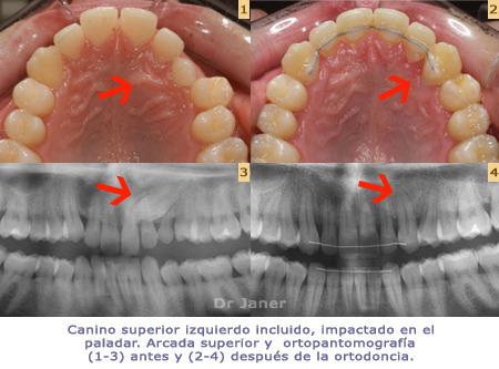 can-impactat-1_ok
