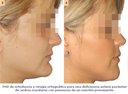 Cara y deformidades