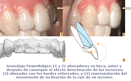 Invisalign G3 - Power Ridges