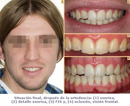 Caso simple Ortodoncia pz