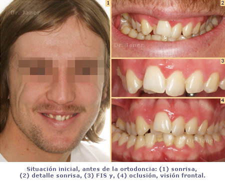 Caso simple Ortodoncia pz2