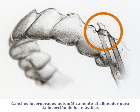 Invisalign_elasticos