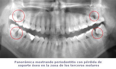 muelasjucicio_periodontits