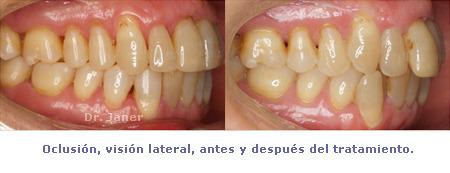 oclusión visión lateral antes y después de tratamiento en caso de apiñamiento y periodontitis