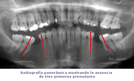 Radiografía panorámica Ortodoncia Adultos