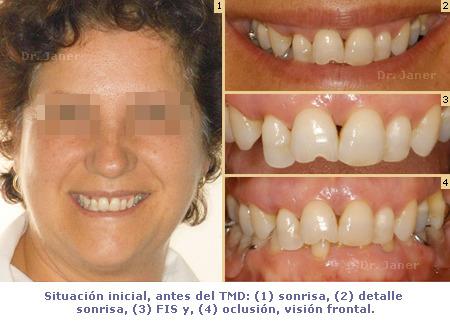 Ortodoncia TMD - caso con periodontitis, mutilación dental, apiñamiento - antes de tratamiento