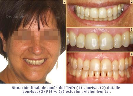 Ortodoncia TMD - caso con periodontitis, mutilación dental, apiñamiento - después de tratamiento