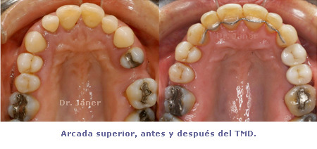 Arcada superior antes de Ortodoncia TMD - caso con periodontitis, mutilación dental, apiñamiento