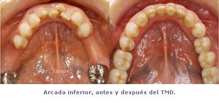 Arcada inferior antes y después de Ortodoncia TMD - caso con periodontitis, mutilación dental, apiñamiento
