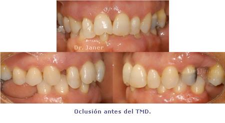 Oclusión antes de Ortodoncia TMD - caso con periodontitis, mutilación dental, apiñamiento