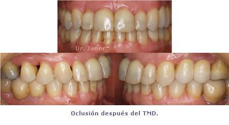 Oclusión después de Ortodoncia TMD - caso con periodontitis, mutilación dental, apiñamiento