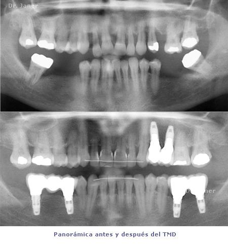 Panorámica antes y después de Ortodoncia TMD - caso con periodontitis, mutilación dental, apiñamiento