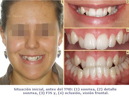 caso ortodoncia multidisciplinar - prognatismo mandibular, mandíbula grande Ortodoncia multidisciplinar - sonrisa antes de TMD