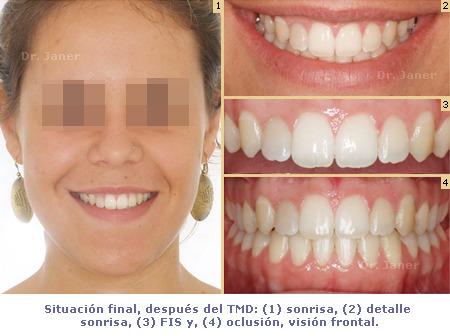 caso ortodoncia multidisciplinar - prognatismo mandibular, mandíbula grande Ortodoncia multidisciplinar - sonrisa después de TMD