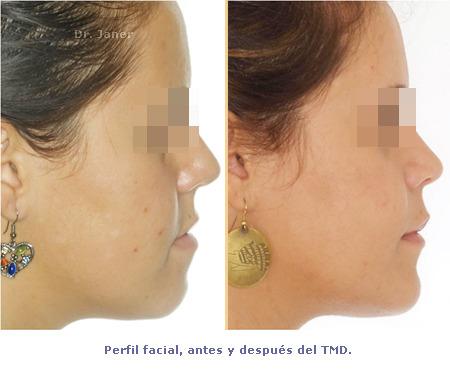 Perfil antes y después de tratamiento con ortodoncia multidisciplinar - prognatismo mandibular, mandíbula grande Ortodoncia multidisciplinar