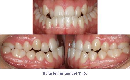 Oclusión antes de tratamiento con ortodoncia multidisciplinar - prognatismo mandibular, mandíbula grande Ortodoncia multidisciplinar