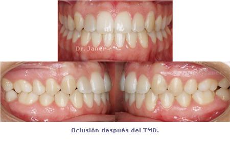 Oclusión después de tratamiento con ortodoncia multidisciplinar - prognatismo mandibular, mandíbula grande Ortodoncia multidisciplinar