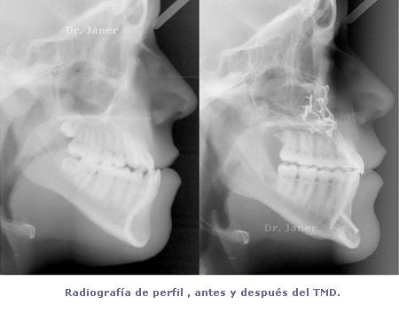 Radiografía de perfil antes y después de tratamiento con ortodoncia multidisciplinar - prognatismo mandibular, mandíbula grande Ortodoncia multidisciplinar