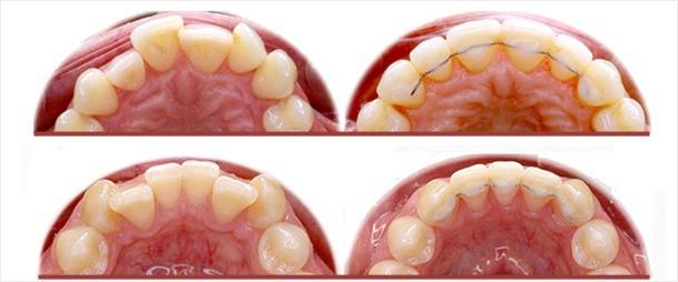 Retenedores linguales fijos para la estabilidad de resultados de ortodoncia_JanerOrtodoncia