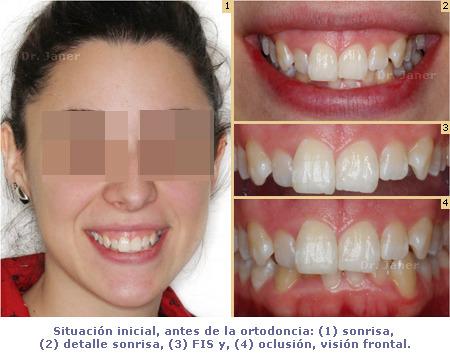Situación inicial de caso con apiñamiento dental e incisivos laterales superiores cortos, resuelto con ortodoncia y composite dental_JanerOrtodoncia