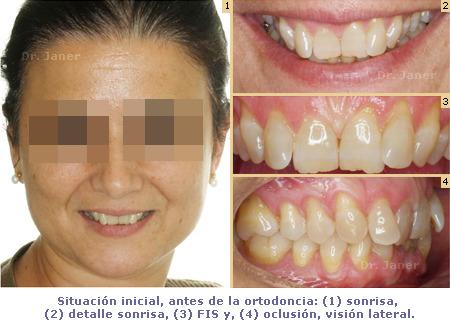 Apiñamiento y desgaste de los incisivos centrales_sonrisa, FIS y oclusión_antes de la ortodoncia_JanerOrtodoncia