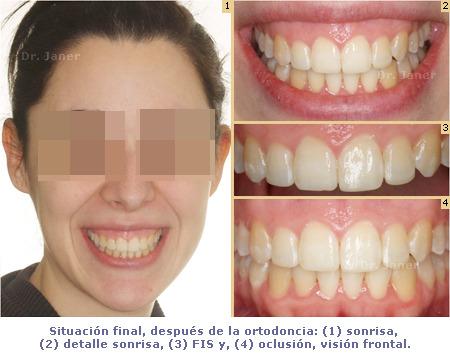 Situación final de caso con apiñamiento dental e incisivos laterales superiores cortos, resuelto con ortodoncia y composite dental_JanerOrtodoncia