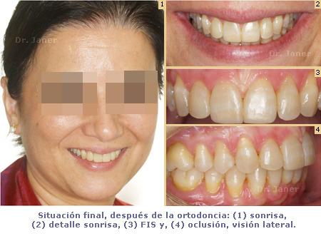 Apiñamiento y desgaste de los incisivos centrales_sonrisa, FIS y oclusión_depués de la ortodoncia_JanerOrtodoncia
