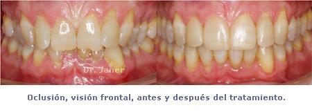 Apiñamiento y desgaste de los incisivos centrales_ oclusión visión forntal antes y después de ortodoncia_JanerOrtodoncia