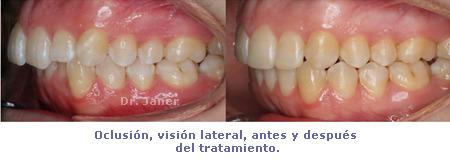 Oclusión visión lateral en caso de ortodoncia con apiñamiento dental e incisivos laterales superiores cortos, resuelto con ortodoncia y composite dental_JanerOrtodoncia