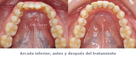 Apiñamiento y desgaste de los incisivos centrales_ arcada inferior antes y después de la ortodoncia_JanerOrtodoncia