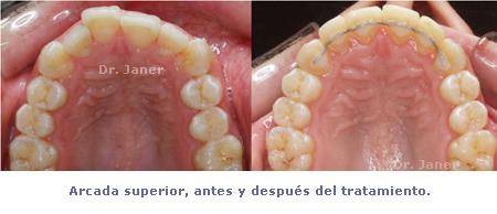 Arcada superior antes y después de ortodoncia con composite dental en caso de apiñamiento dental e incisivos laterales superiores cortos_JanerOrtodoncia