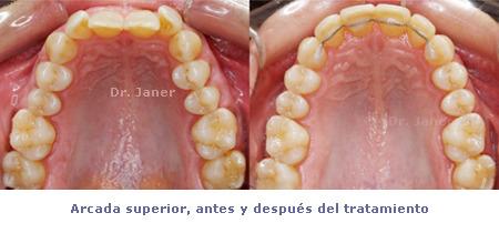 Apiñamiento y desgaste de los incisivos centrales_ arcada superior antes y después de la ortodoncia_JanerOrtodoncia