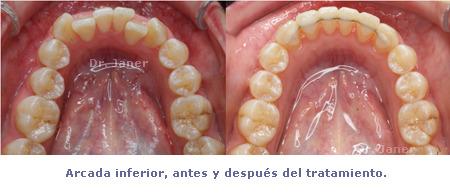 Arcada inferior antes y después de la ortodoncia con composite dental en un caso resuelto de apiñamiento dental e incisivos laterales superiores cortos_JanerOrtodoncia