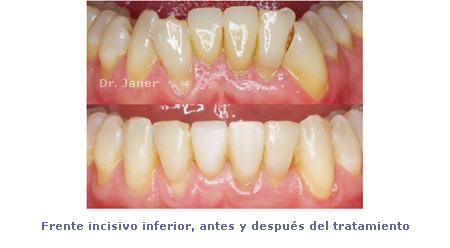 Apiñamiento y desgaste de los incisivos centrales_incisivos inferiores antes y después de la ortodoncia_JanerOrtodoncia