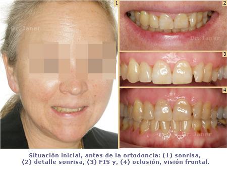 Caso de apiñamiento con periodontitis_resuelto con Invisalign_situación antes de la ortodoncia