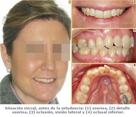 Caso de apiñamiento dental resuelto con Invisalign_foto antes de la ortodoncia_JanerOrtodoncia