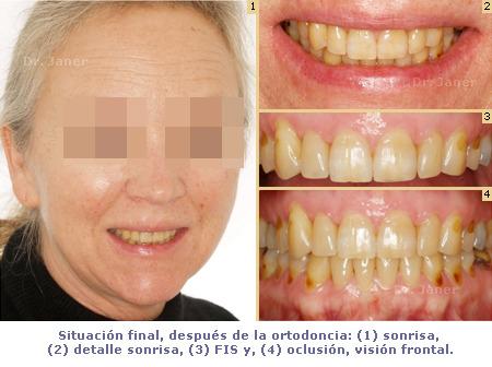 Caso de apiñamiento con periodontitis_resuelto con Invisalign_situación después de la ortodoncia_JanerOrtodoncia