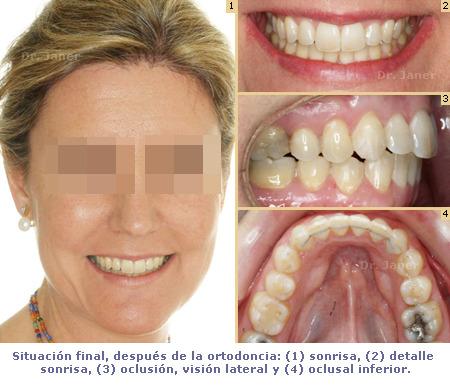 Caso de apiñamiento dental resuelto con Invisalign_foto después de la ortodoncia_JanerOrtodoncia