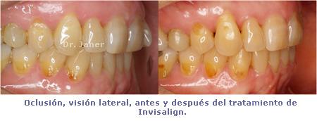 Caso de apiñamiento con periodontitis_resuelto con Invisalign_oclusión visión lateral antes y después de la ortodoncia_JanerOrtodoncia