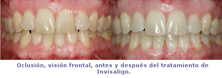 Caso de apiñamiento dental resuelto con Invisalign_foto oclusión frontal antes y después de la ortodoncia_JanerOrtodoncia