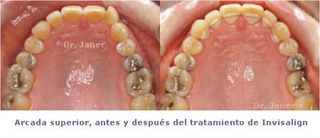 Caso de apiñamiento con periodontitis_resuelto con Invisalign_arcada superior antes y después de la ortodoncia_JanerOrtodoncia