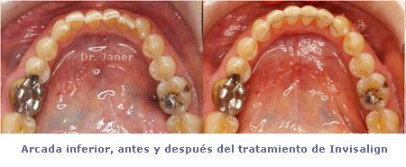Caso de apiñamiento con periodontitis_resuelto con Invisalign_arcada inferior antes y después de la ortodoncia_JanerOrtodoncia