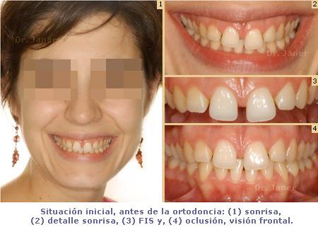 Situación inicial de caso resuelto de super diastema con ortodoncia y periodontología_JanerOrtodoncia