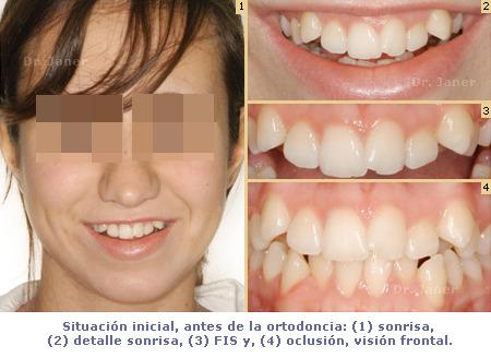ortodoncia_caso resuelto con apiñamiento dental severo_foto antes de la ortodoncia_JanerOrtodoncia